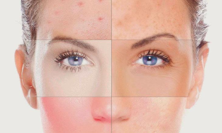Tratamientos de belleza pieles sensibles